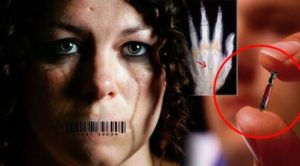 They Thought She Was Insane Before Doctor Finds RFID Chip In  Sex Trafficking Victim
