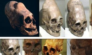 DNA Tests Reveal Where 'Elongated Heads Came From'